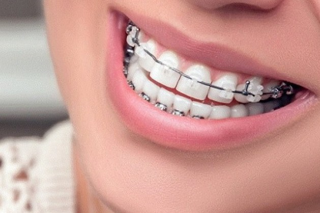 تجارب تقويم الأسنان