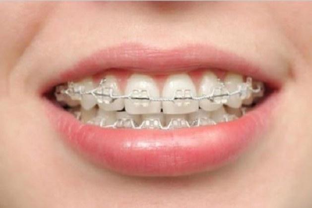تجارب تقويم الاسنان الشفاف
