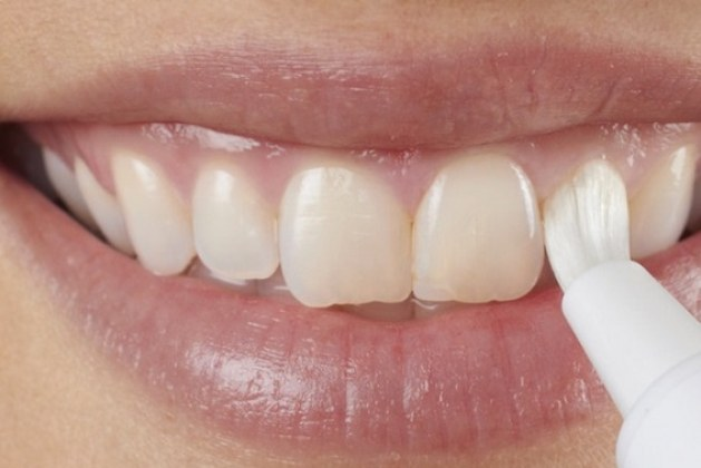 تجارب قلم تبييض الأسنان