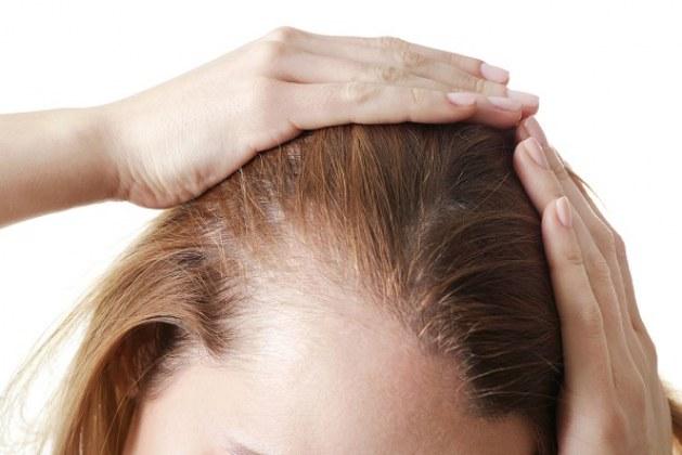 تجارب عملية زراعة الشعر