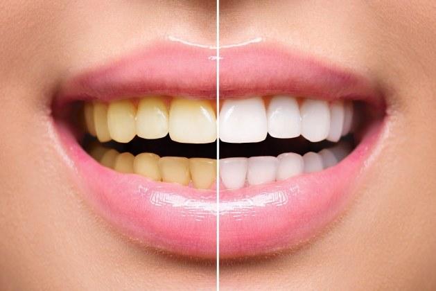 تجربتي مع وصفات تبييض الاسنان