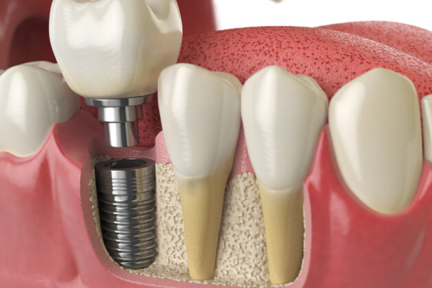 تجربتي مع زراعة الأسنان